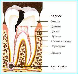 Kista zuba