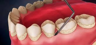 Зубной камень - удаление Позняки