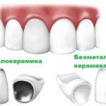 Зубні коронки: кращий варіант протезування для складних випадків