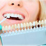 Реставрація зубів: усунення дефектів