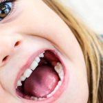 7 причин, чому варто звернутися до стоматолога