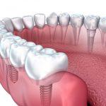 Имплантация зубов: виды и описание имплантов