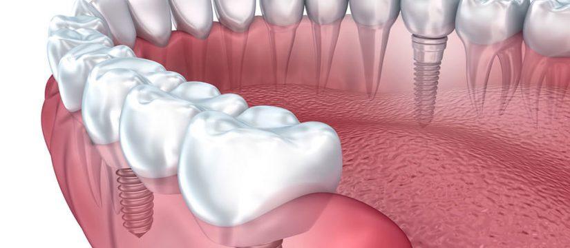 1d7f430bfbaf1 Имплантация зубов: виды и описание имплантов - Elma