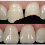 Наращивание зубов