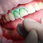 Инновационное лечение зубов без сверления